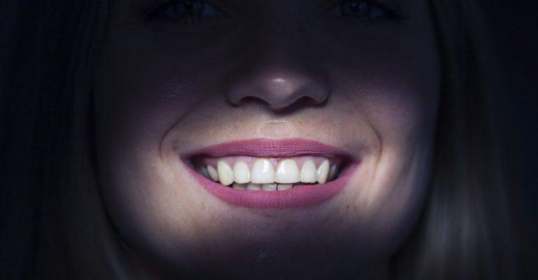 הלבנת-שיניים-1024x683