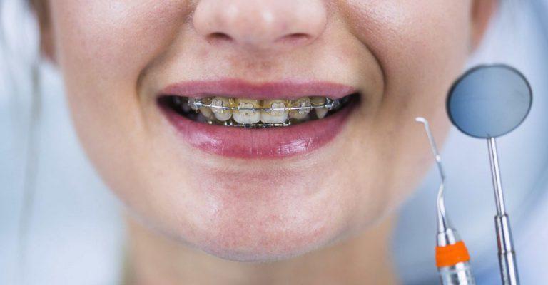 יישור-שיניים-1024x683